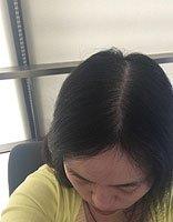 女生头发细软容易脱发出油怎样办 紧急处理出油头发方式