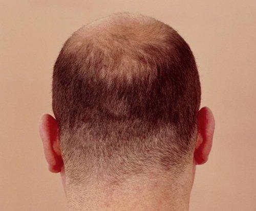 头顶一直在掉发都快成地中海了 年轻男生狂掉发抓紧治疗挽回面子