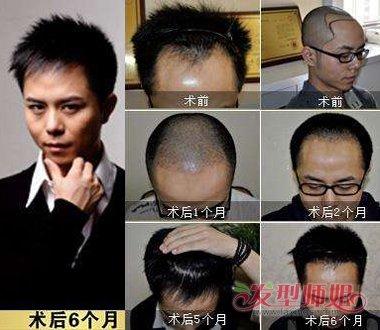 种植头发后效果图