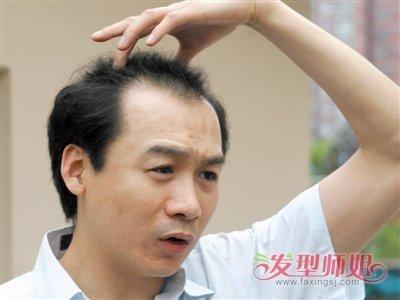 男性遗传脱发能治好吗 脱发男生适合什么发型