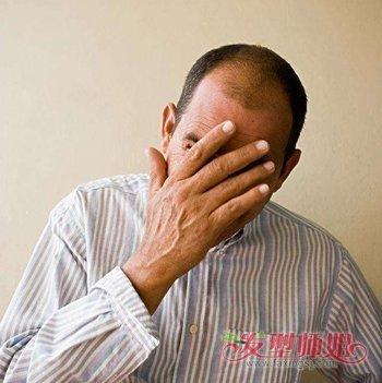 男性脱发严重是什么原因 三十岁男人脱发的原因